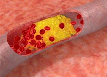 Лечение зуда кожи при сахарном диабете у женщин