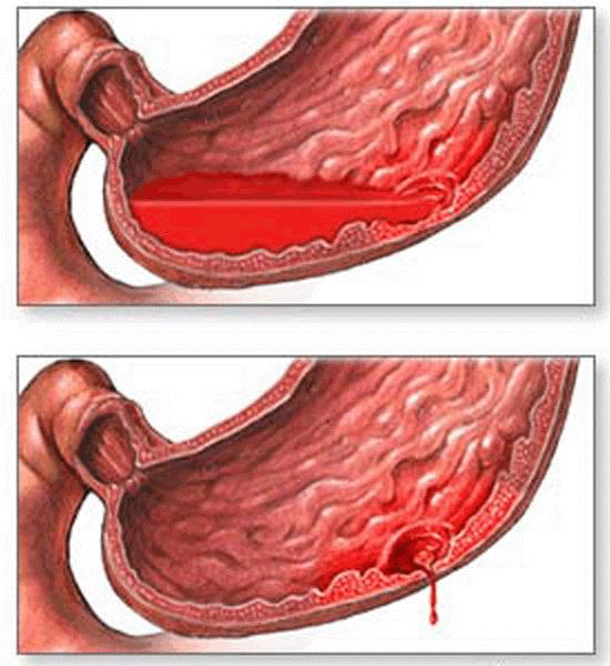 Кровотечения из дуоденальных язв встречаются значительно чаще, чем из язв желудка, хотя язва желудка осложняется кровотечением чаще