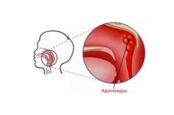 Аденоиды как причина гайморита