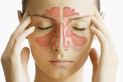 Физиологические причины насморка