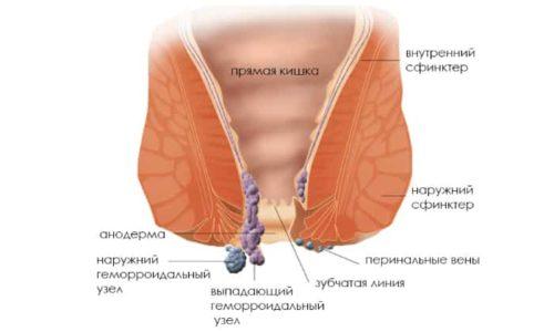 Наружный (внешний) геморрой, сопровождающийся увеличением и воспалением геморроидальных узелков – самая распространённая болезнь проктологического характера