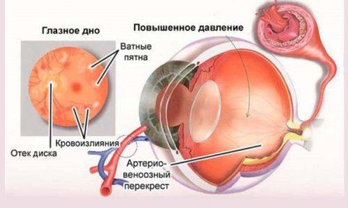 Иногда повышение глазного давления является нормальным. Тогда утром наблюдается увеличение, а к обеду показатели становятся нормальными. Самое низкое давление наблюдается ночью