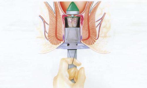 Операции на воспалённом геморрое по методу Лонго не проводится при наружной форме проктологического заболевания