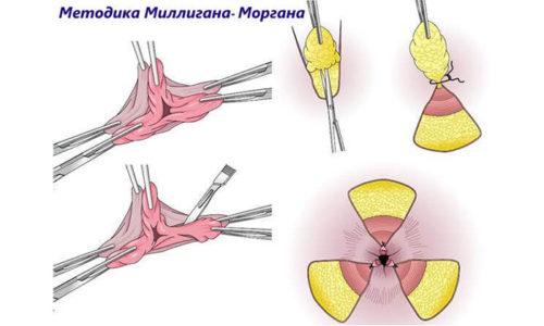 Обычно помещение в стационар показано, если назначено удаление геморроя по Миллигану-Моргану, предполагающее применение общей анестезии