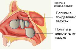 Полипы - причина гнойного насморка