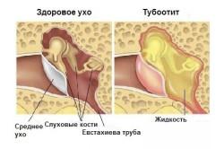 Схема тубоотита