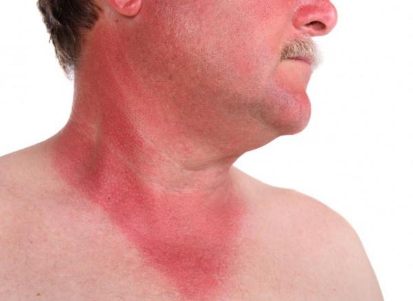 Солнечные ожоги шеи