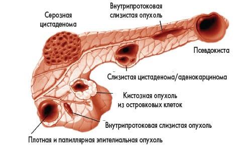 Варианты кистозных образований желудка