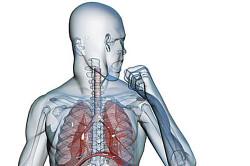 Заболевание бронхов - причина кашля