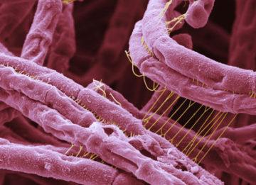 Особенности проведения вакцины против сибирской язвы