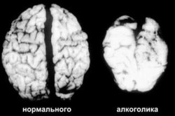снимок мозга алкоголика