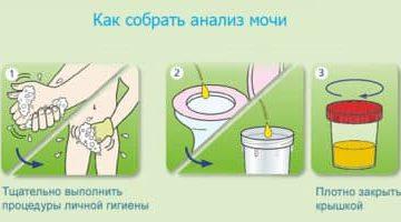 О чем может говорить обнаружение жира в моче?
