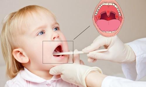 Диагностика ангины у детей