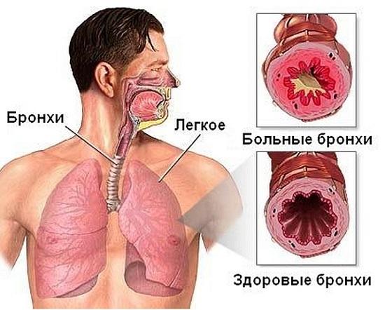 bronhialnaja_astma-izmeneniya-bronxov