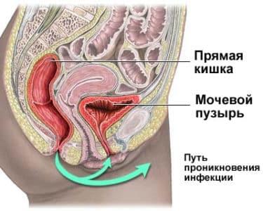 Картинка 3