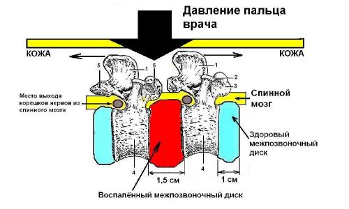 Методы диагностики панкреатита