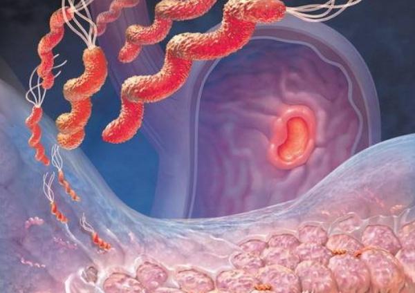 дизбактериоз