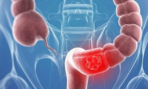 Дискинезия толстого кишечника – это дискоординация перистальтики кишечной стенки