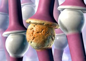 Остеоартрит сустава