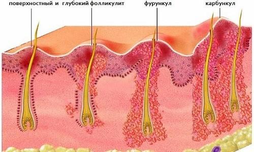 Фурункул лобковой части