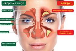 Возникновение гайморита как осложнение после насморка