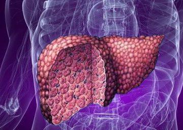 Каким должно быть лечение при ожирении печени?