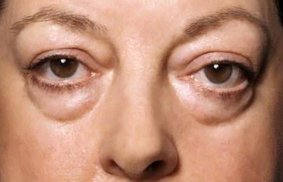 Глаза мешки
