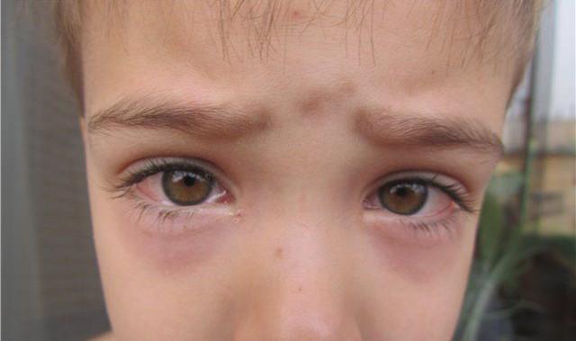 Глаза слезяться