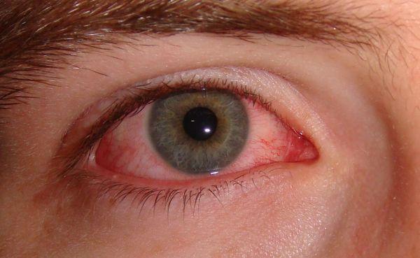 Глаза красные