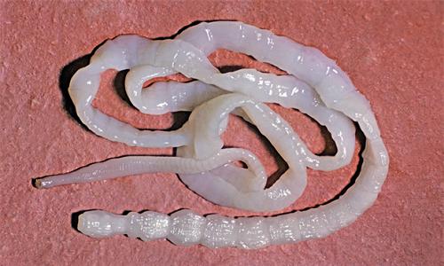 Смесь гвоздики и семян льна изгоняет аскарид и других нематоды, обитающие в кишечнике человека