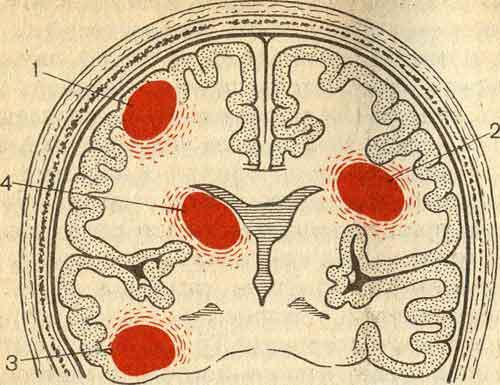 абсцесс головы
