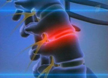 Использование хондопротекторных препаратов при лечении грыжи позвоночника