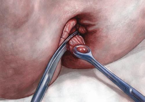 haemorrhoidectomy