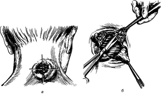 удаление карбункла