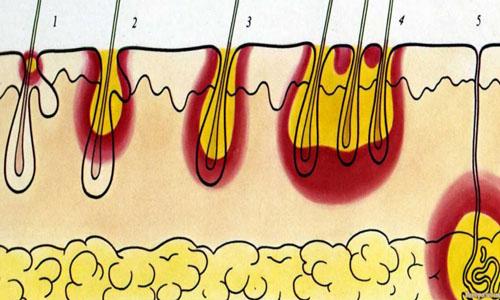 формирование карбункла