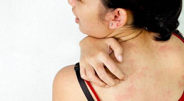 Кожа аллергия
