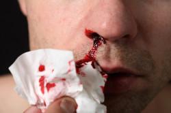 Кровотечение из носа - причина попадания крови в слюну