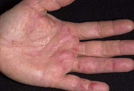 Ладони аллергия