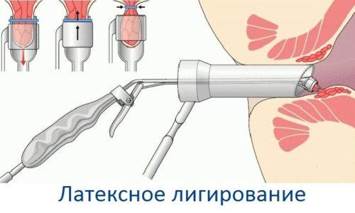 К числу наиболее распространённых миниинвазивных методик относят лигирование шишек кольцами из латекса