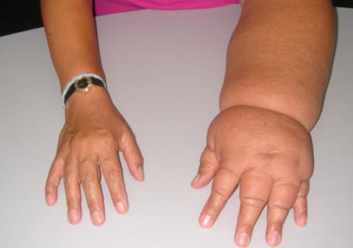 лимфостаз рук