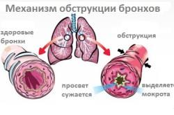 Обструктивный бронхит как противопоказание к применению спрея от горла