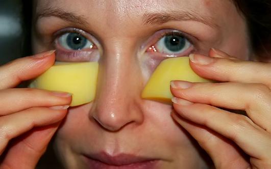 Мешки глаза