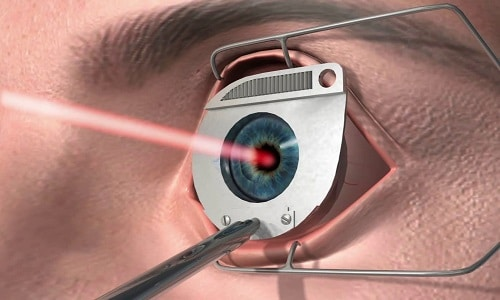 При повышении глазного давления назначают хирургическое вмешательство. Известно несколько видов операций: иссечение радужки лазером или растягивание лазером трабекулы