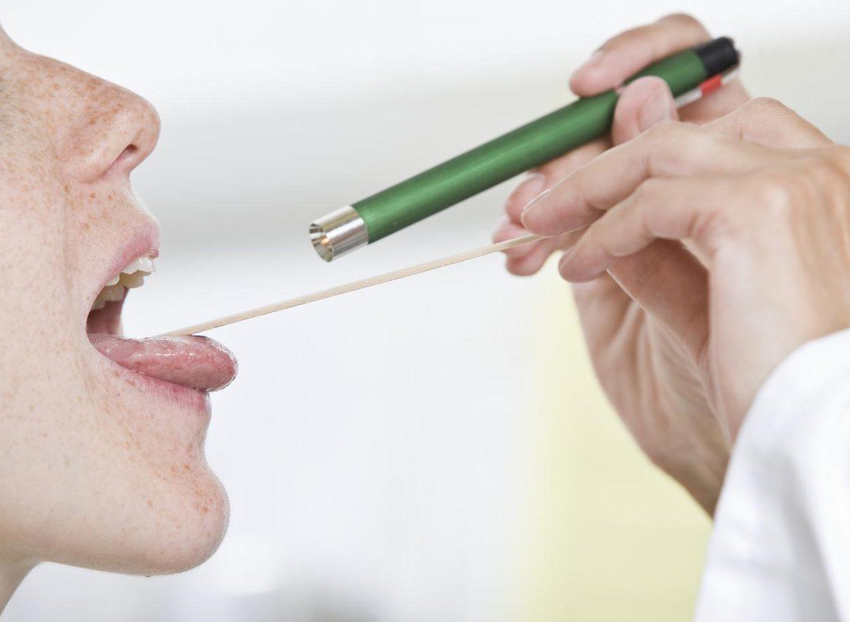 Опухания язычка в горле