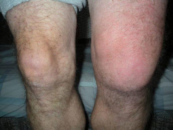 Отека коленного сустава