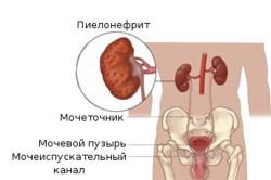 Схема пиелонефрита