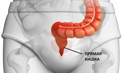 Увеличение и воспаление геморроидальных узелков связано с расширением венозных сплетений в прямой кишке