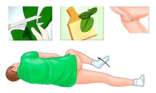 Примочка из лопуха. Это средство неплохо снимает зуд и уменьшает выраженность болевого синдрома