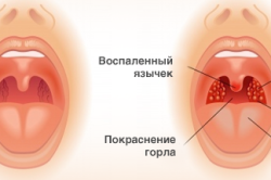 Визуальные признаки ангины