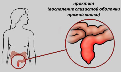 Ультрапрокт помогают снизить отёчность, воспалительные процессы